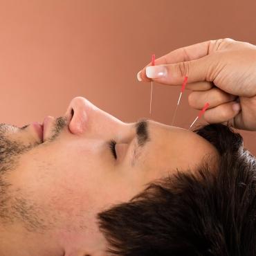Mon premier traitement d'acupuncture